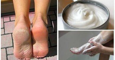 Elimina los hongos y los callos de los pies con este increíble remedio casero