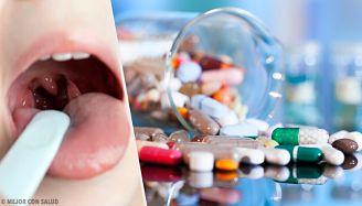 Tratamiento para la amigdalitis aguda