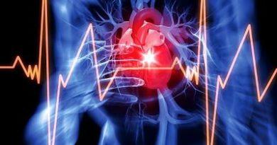 Cardíaco abierto, todo lo que debes saber