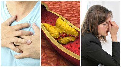 Síntomas de colesterol alto que no debes ignorar