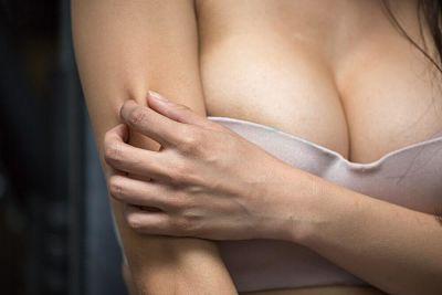 3 remedios naturales para calmar la comezón en los senos