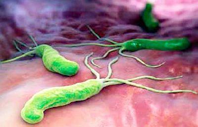 Método Natural Para Eliminar La Bacteria Helicobacter Pylori Del Estómago