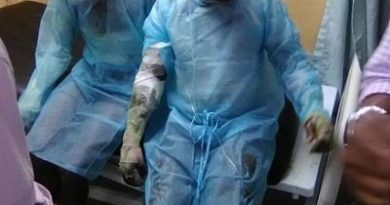 En estado delicado uno de dos obreros quemados en explosión de Mina Larimar en Barahona