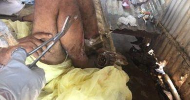 INDIGNACIÓN !Denuncian agentes del 911 supuestamente rechazan llevar hombre con gusanos en una pierna en Guerra
