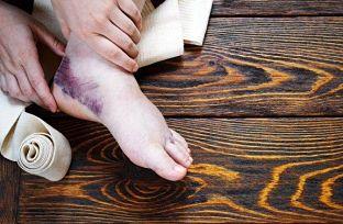 Mejorar un esguince de tobillo con remedios complementarios Un esguince de tobillo es una torcedura que puede ocurrirle a cualquiera, provocado por movimientos bruscos al correr, caminar, un indebido calentamiento o errores a la hora de ejercitarse. Una alternativa es mejorar un esguince de tobillo con remedios naturales complementarios al tratamiento médico. El primer síntoma de una distensión del tobillo es un fuerte dolor.Esto ocurre porque los ligamentos sufren un estiramiento que, pude incluso, dañar la articulación. Un esguince mal curado puede, con el tiempo, generar otras consecuencias. Consejos y recomendaciones básicas Combinar el reposo con ejercicios suaves mejorará la circulación del tobillo y su posterior curación. Después de una distensión de ligamentos, lo primero es evitar apoyar el pie en el suelo,por lo quese debe inmovilizar en la medida de lo posible. Es recomendable liberarlo de cualquier tipo de presión y utilizar muletas antes de intentar caminar. Un esguince de tobillo no debe tomarse a la ligera, ya que podría tratarse de algo serio que retrase su cura. Lo primero a tener en cuenta es guardar reposo. Además, se debe elevar la pierna a la altura del corazón para reducir la inflamación y el dolor. Otra recomendación es mover los dedos de los pies,lo que facilitará la recuperación y disminuirá la inflamación.Los estiramientos suaves también son recomendables, así el tobillo mejorará la circulación. Remedios naturales para mejorar un esguince de tobillo Entre los tratamientos que existen para curar un esguince de tobillo se encuentran los remedios naturales, complementarios a los que prescribe un médico.Si la lesión es leve puede tratarse en casa usando algunos remedios fáciles de preparar y sencillos de aplicar Si por el contrario la torcedura presenta un mayor grado de complicación,lo ideal es acudir a untraumatólogo especialistapara que trate la afección. Hielo, el mejor aliado El hielo reduce la inflamación causada y la sensación de dolor p