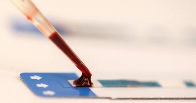 Un tercer paciente se habría curado del VIH después de un trasplante de médula ósea