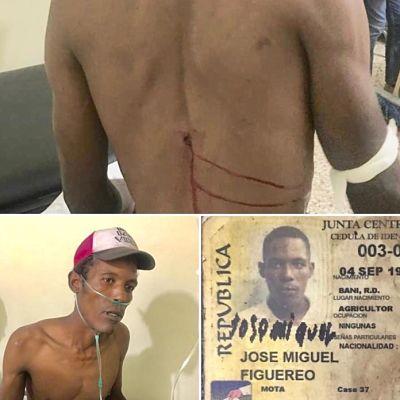 Hieren hombre de un tiro en la espalda al ser confundido con ladrón en Baní