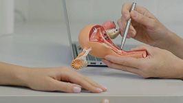 Ovarios poliquísticos y cuál es su tratamiento