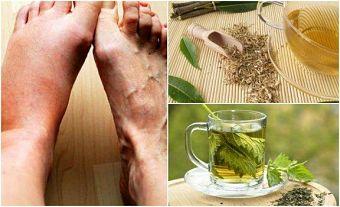 Tés herbales para bajar el nivel de ácido úrico