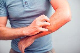 Remedios naturales para calmar el prurito o picazón