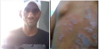 ATENCIÓN Detienen hombre que roció ácido del diablo a una mujer y un niño en Arenoso