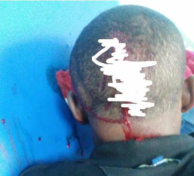 ATENCIÓN; Hieren a machetazos y despojan de un motor a un joven de San Juan