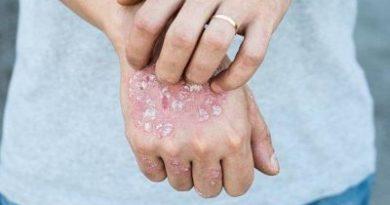 AVISO: Tratamientos herbales tópicos para la psoriasis
