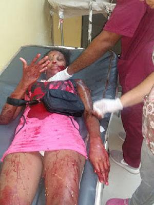 BARAHONA; Trabajadora sexual le fue a cobrar a un hombre,y este respondió dándole varias puñaladas