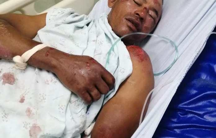 ATENCIÓN : Ingresan hombre accidentado en Hospital Prof. Bosch de La Vega