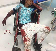 TERRIBLE ;Pleito a machetazos deja dos jóvenes heridos en Villa Liberación