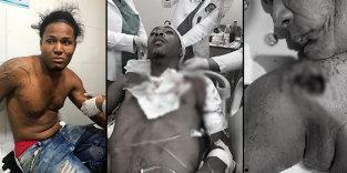 ATENCIÓN :Una mujer muerta y dos heridos en medio de un incidente