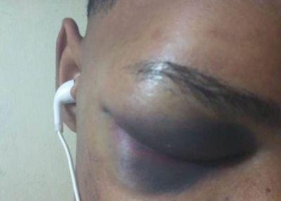 DENUNCIA : Recluso de cárcel denuncia otro lo agredió por no darle RD$ 200 para poder usar celular