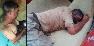TERRIBLE :Golpean e intentan enterrar vivo a un hombre