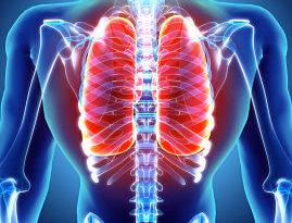 ATENCIÓN: Atelectasia: síntomas y causas