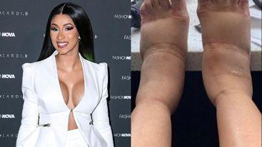 ATENCIÓN : Cardi B muestra las graves consecuencias de la cirugía estética publica sus pies abatidos
