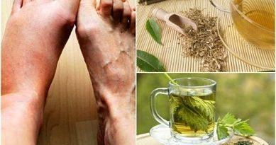 ATENCIÓN: Tés herbales para bajar el nivel de ácido úrico