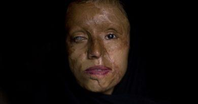 ALERTA :Irán castigará con la pena de muerte los ataques con ácido