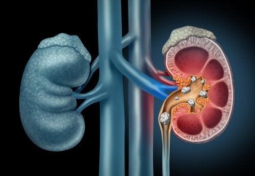 ATENCIÓN: Dieta para las piedras en los riñones: consejos y ejemplos de menús