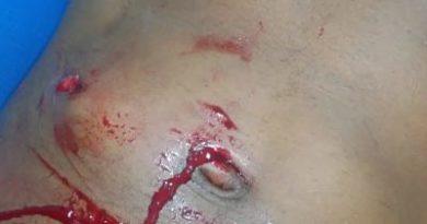 Seis personas heridas durante un rebú en centro de diversión de San Juan