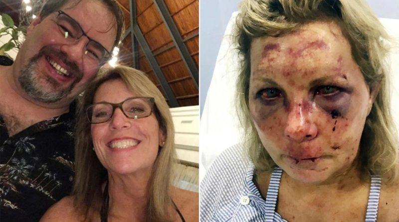 Según esposo de turista masacrada en Punta Cana denuncia la PN se negó a investigar y miente