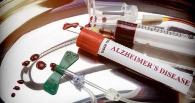 Análisis de sangre puede predecir en 94% si sufrirá de Alzheimer hasta 20 años antes