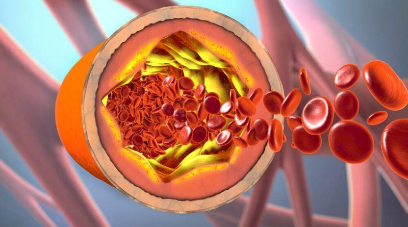 ATENCIÓN: ¿Cuál es la diferencia entre sangre venosa y sangre arterial?