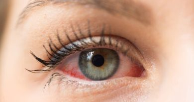 ATENCIÓN: Queratitis herpética, ¿en qué consiste?