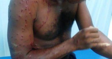 Joven enfrenta dos ladrones dentro de su casa, le dieron un cartuchazo