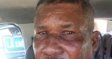 PN apresa hombre acusado de intentar abusar sexualmente de menor con discapacidad en Cabrera.