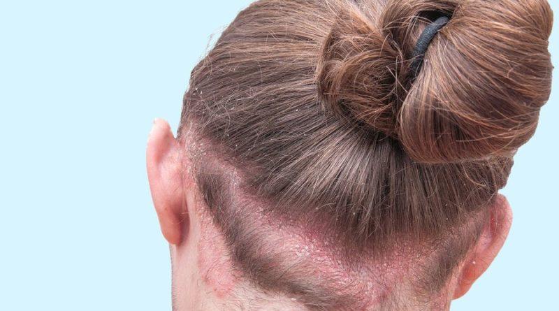 ATENCIÓN: Dermatitis seborreica: síntomas y tratamiento