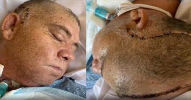 Muere dominicano un mes después de ser golpeado en billar de centro comunitario en Lawrence