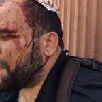 Peregrinos de El Seibo denuncian que recibieron agresiones por parte de la PN