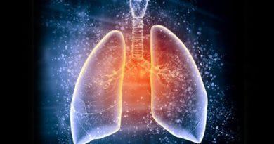 ATENCIÓN: Edema pulmonar, ¿cuáles son sus síntomas y causas?