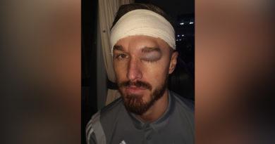 """Futbolista muestra el enorme hematoma en su rostro que le causó el choque con la cabeza """"hecha de concreto"""" de un compañero"""