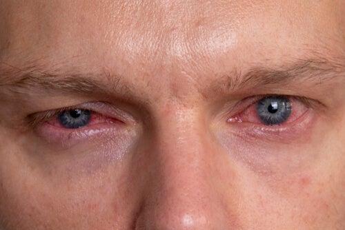 ATENCIÓN: Manchas rojas en los ojos: ¿por qué se producen?