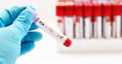 ¿Cómo es un examen de próstata?