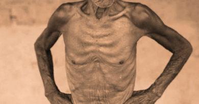 La malnutrición: La alimentación en condiciones de dignidad de la persona enferma