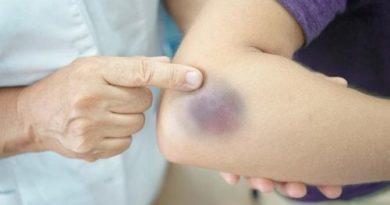 Características de la enfermedad de púrpura de Schönlein