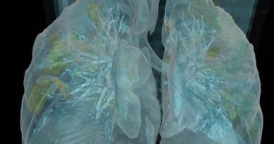 muestra los efectos del covid-19 sobre unos pulmones sanos