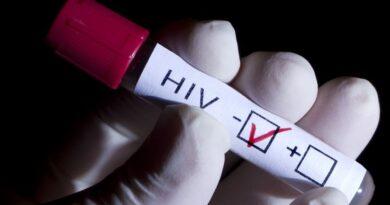 Desarrollan tratamiento de vacunación para reforzar inmunidad ante el VIH