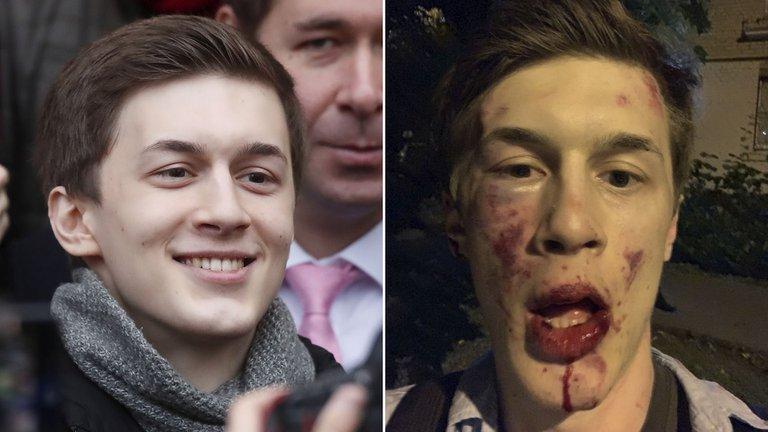Un periodista y activista ruso crítico con Vladimir Putin fue herido en una brutal golpiza en Moscú