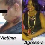Acusan mujer de desfigurarle el rostro a una menor en Pimentel