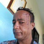 Hieren y golpean artista y político de San Juan, culpa a funcionarios