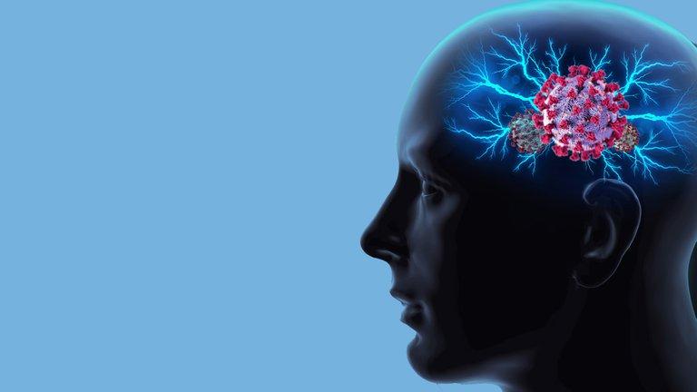 ATENCION:Desde pensamiento confuso hasta accidentes cardiovasculares: las extrañas formas en las que el COVID-19 puede afectar el cerebro